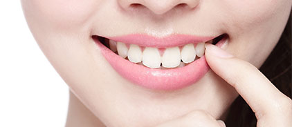 Woman smiling, displaying positive results from teeth whitening from Total Dentistry in Palatine, IL